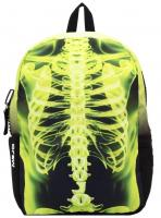 Backpack Rib Cage